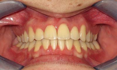 Dental Brace Cases