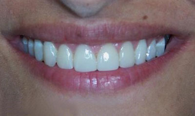 Plastic Periodontal Surgery Cases