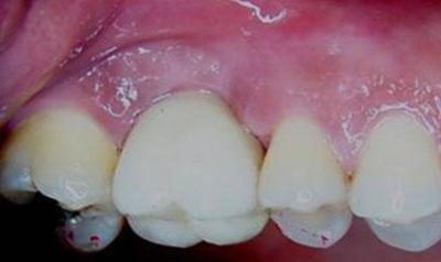 Dental Implant Cases