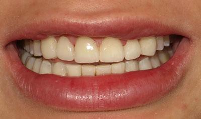 Dental Veneer Cases