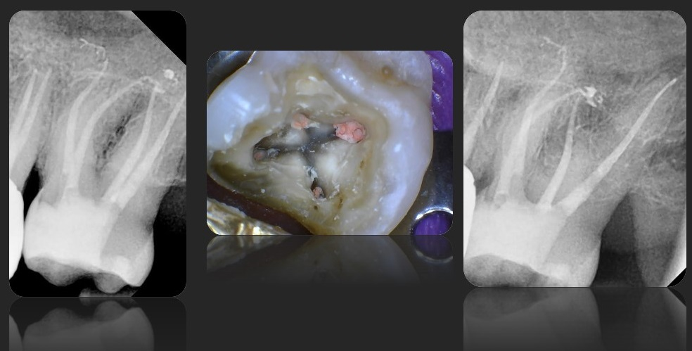 Root Canal Treatment Case